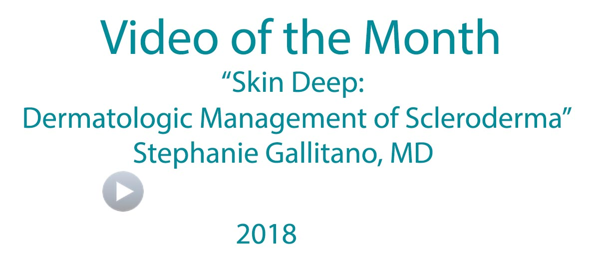 Scleroderma Video of the Month